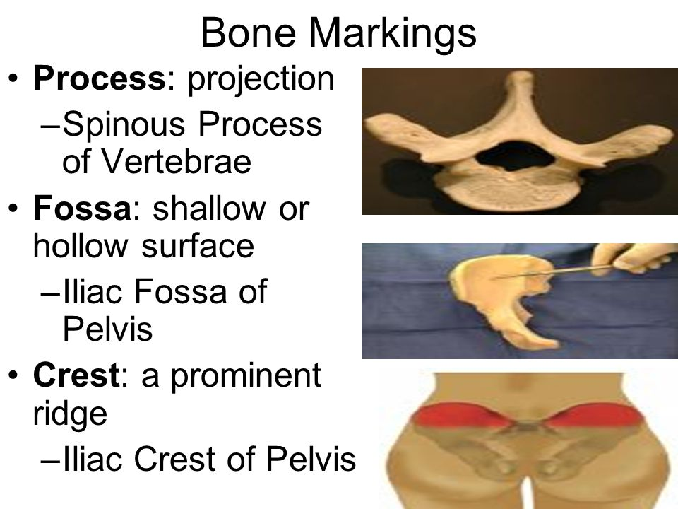 Bone Markings Process: projection Spinous Process of Vertebrae