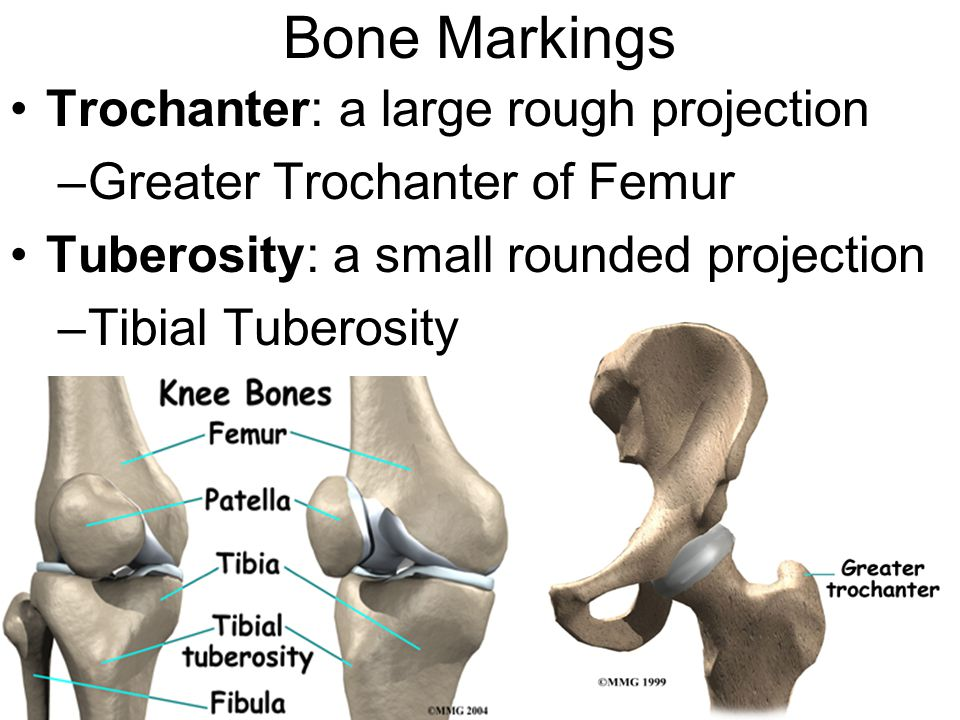 Bone Markings Trochanter: a large rough projection