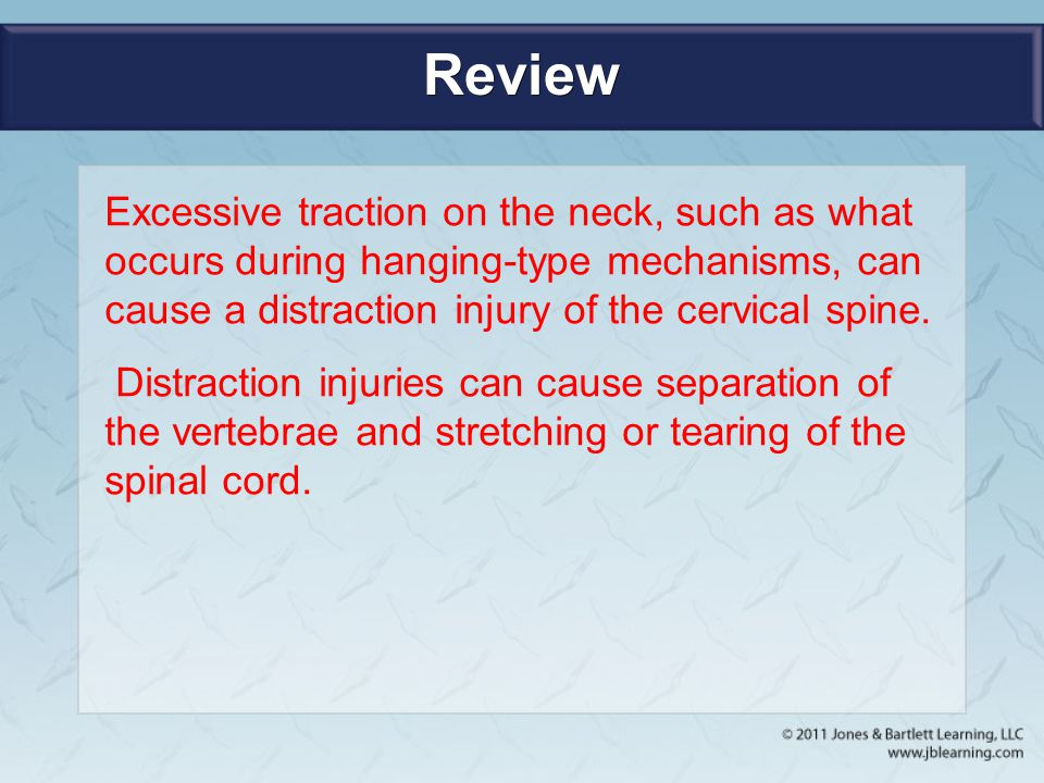 Review Excessive traction on the neck, such as what occurs during hanging-type mechanisms, can cause a distraction injury of the cervical spine.