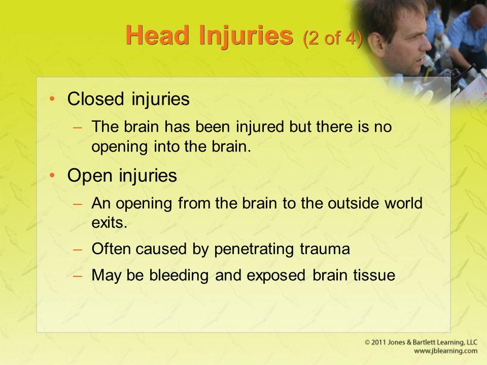 Head Injuries (2 of 4) Closed injuries Open injuries