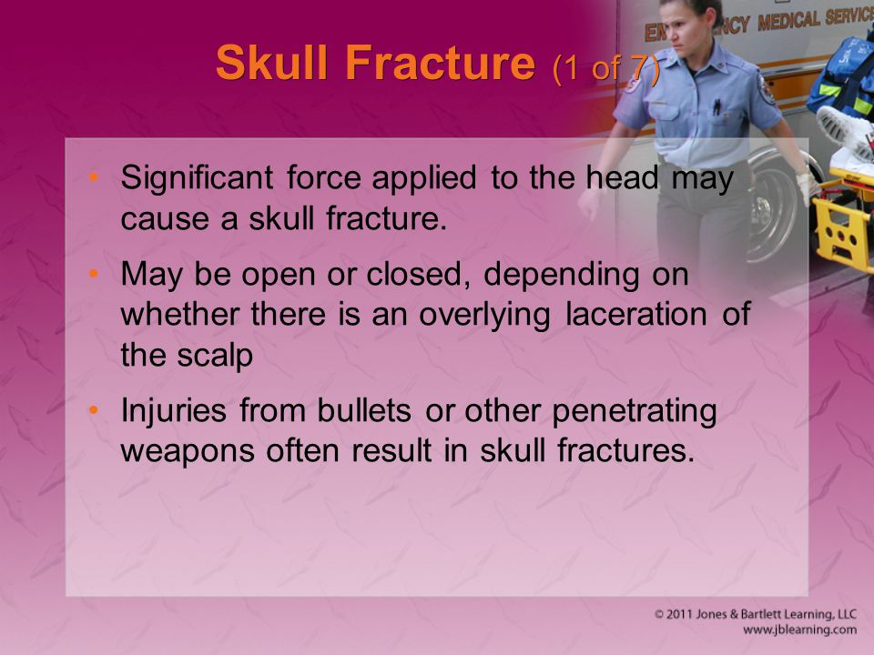 Skull Fracture (1 of 7) Significant force applied to the head may cause a skull fracture.