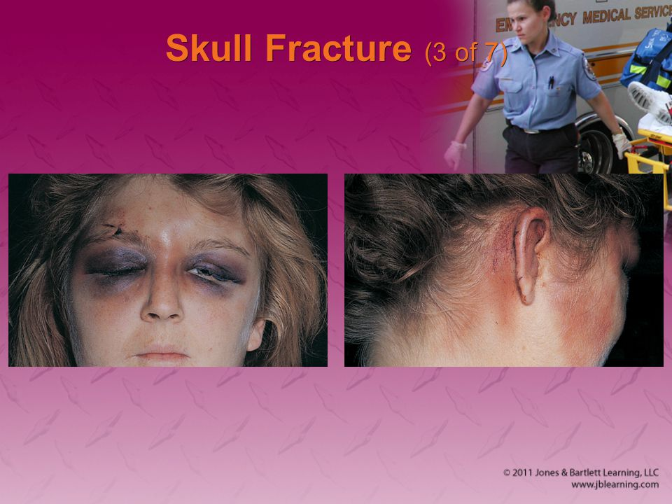 Skull Fracture (3 of 7)