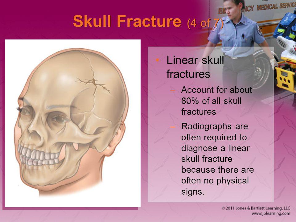 Skull Fracture (4 of 7) Linear skull fractures