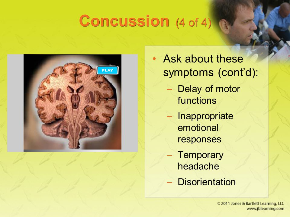 Concussion (4 of 4) Ask about these symptoms (cont'd):