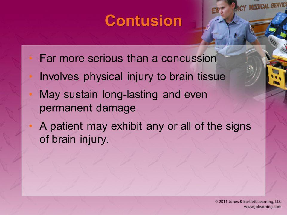 Contusion Far more serious than a concussion