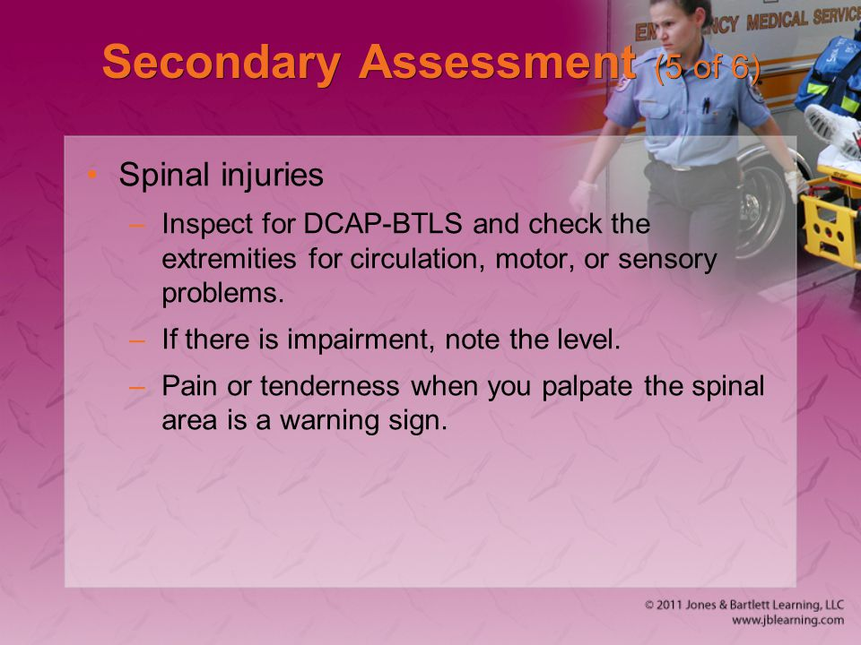 Secondary Assessment (5 of 6)