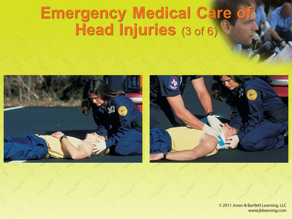 Emergency Medical Care of Head Injuries (3 of 6)