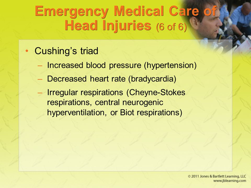 Emergency Medical Care of Head Injuries (6 of 6)