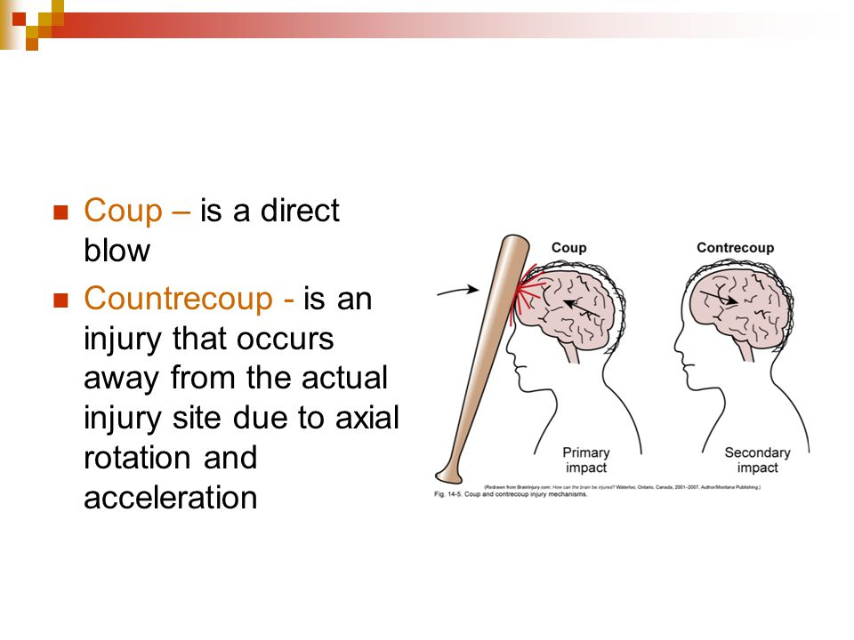 Coup – is a direct blow Countrecoup - is an injury that occurs away from the actual injury site due to axial rotation and acceleration.