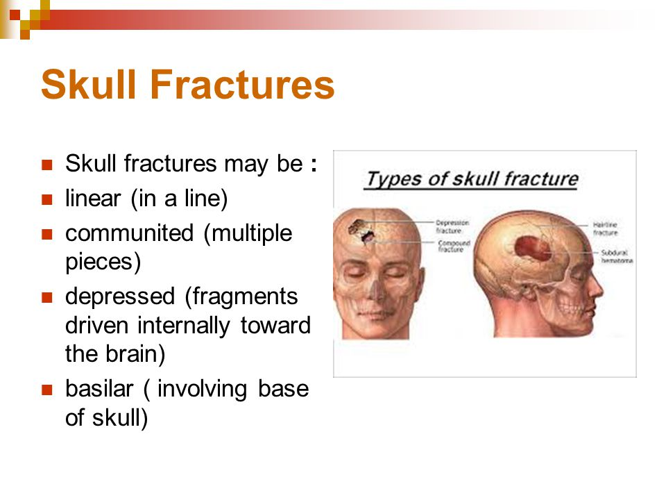 Skull Fractures Skull fractures may be : linear (in a line)