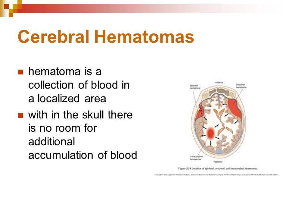 Cerebral Hematomas hematoma is a collection of blood in a localized area.