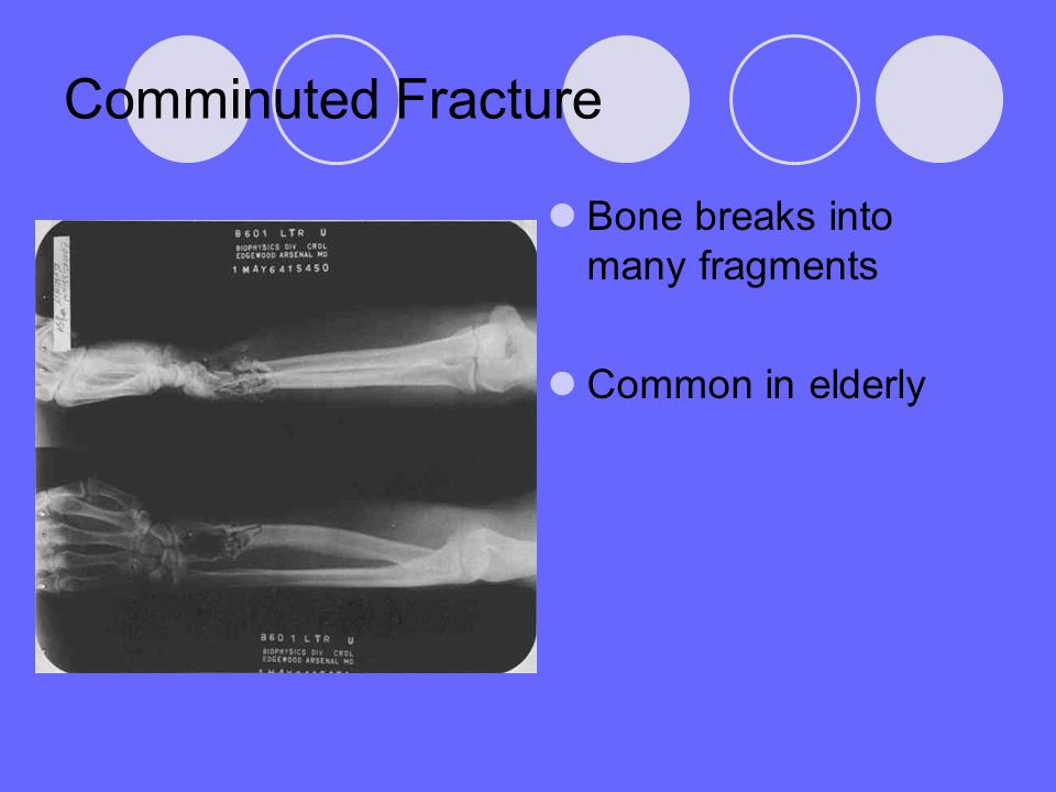 Comminuted Fracture Bone breaks into many fragments Common in elderly