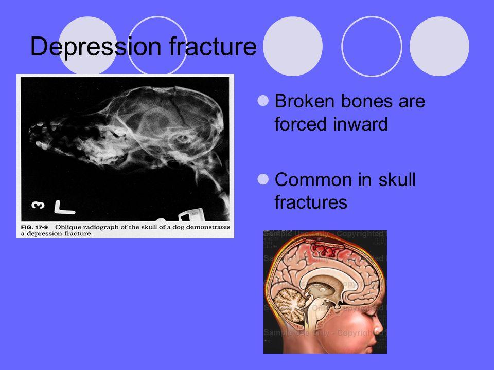 Depression fracture Broken bones are forced inward