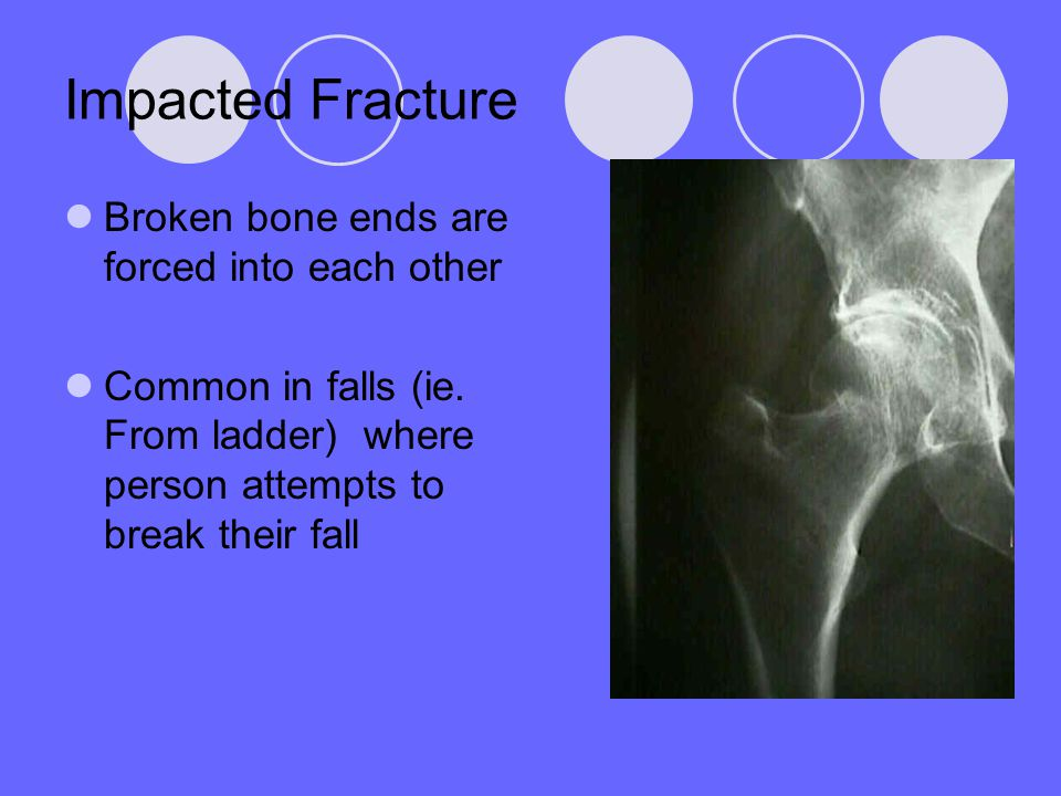 Impacted Fracture Broken bone ends are forced into each other