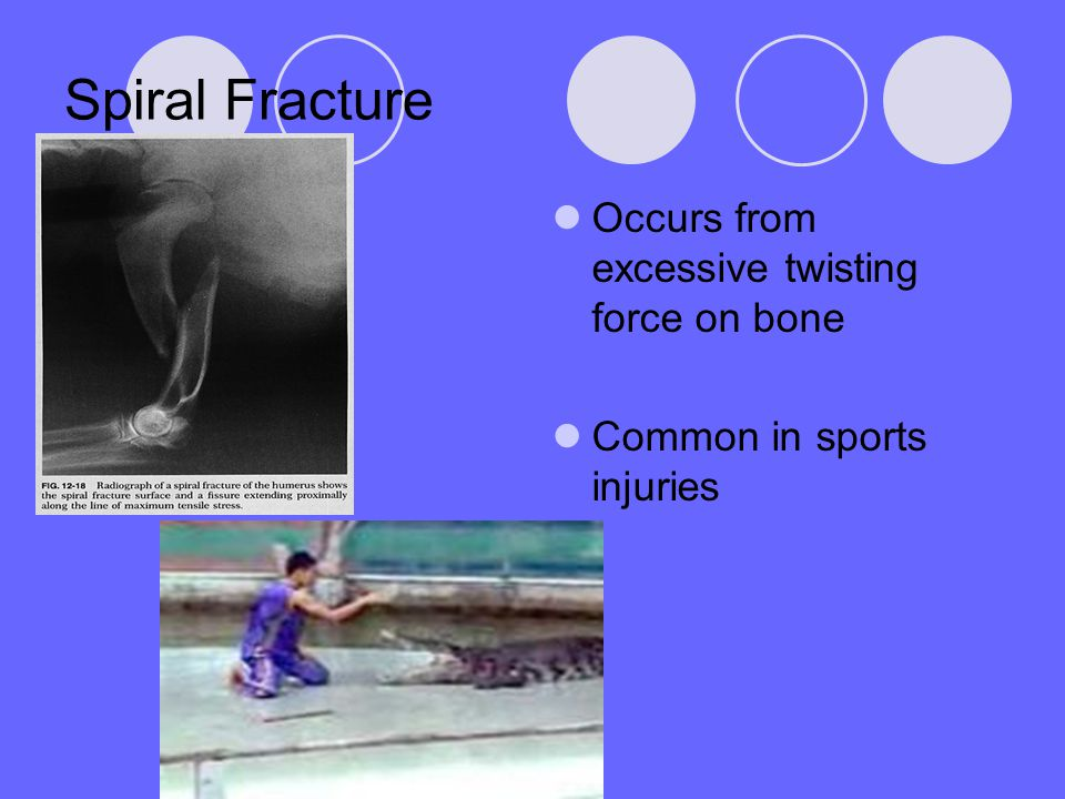 Spiral Fracture Occurs from excessive twisting force on bone