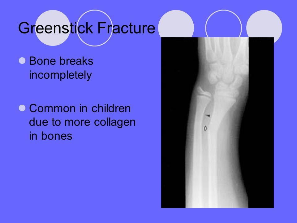 Greenstick Fracture Bone breaks incompletely