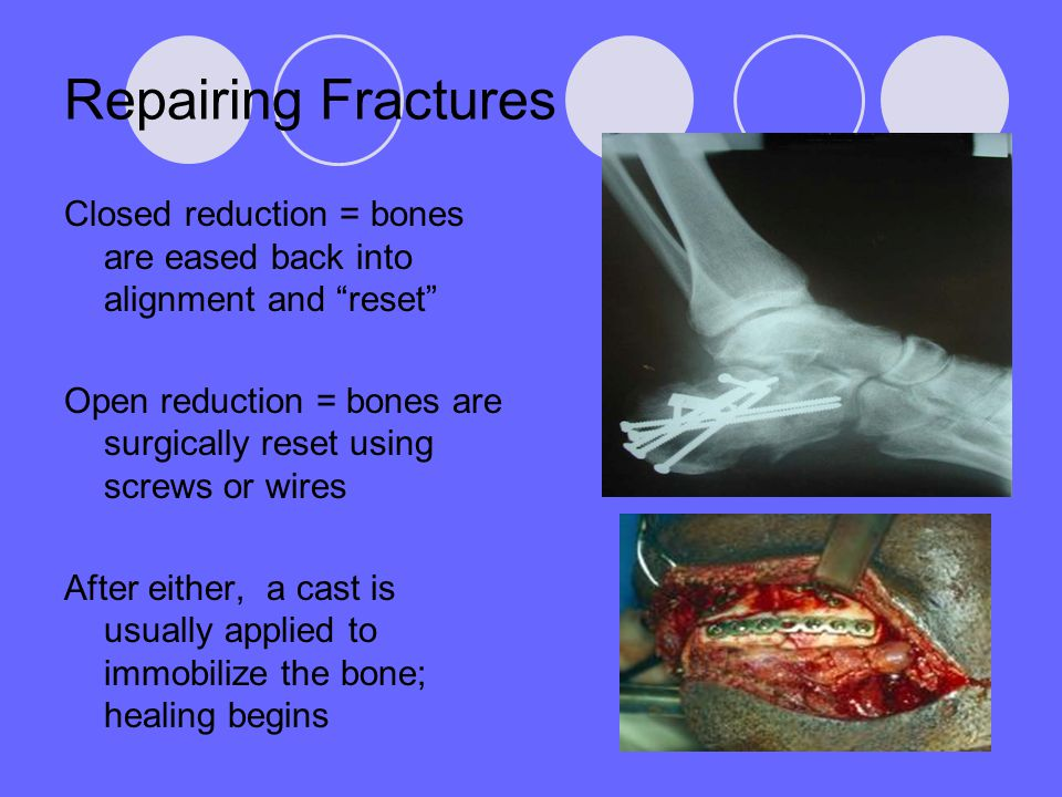 Repairing Fractures Closed reduction = bones are eased back into alignment and reset