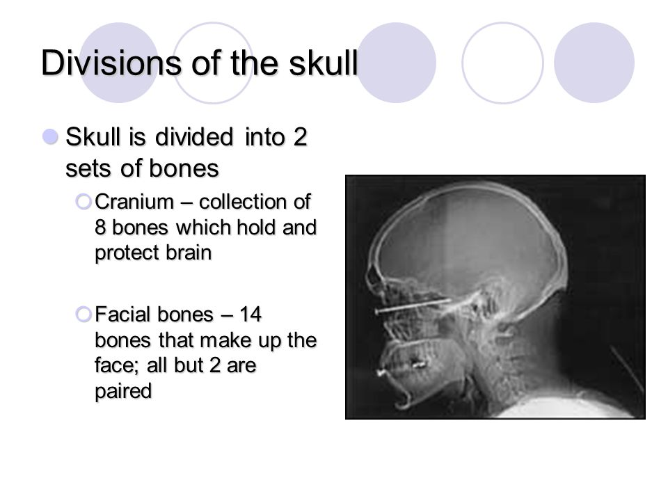 Divisions of the skull Skull is divided into 2 sets of bones