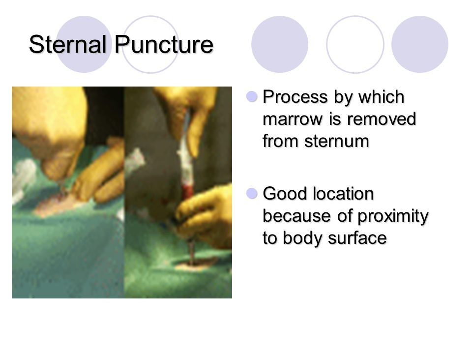 Sternal Puncture Process by which marrow is removed from sternum
