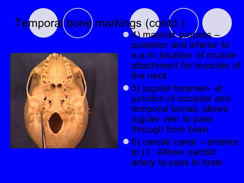 Temporal bone markings (contd.)