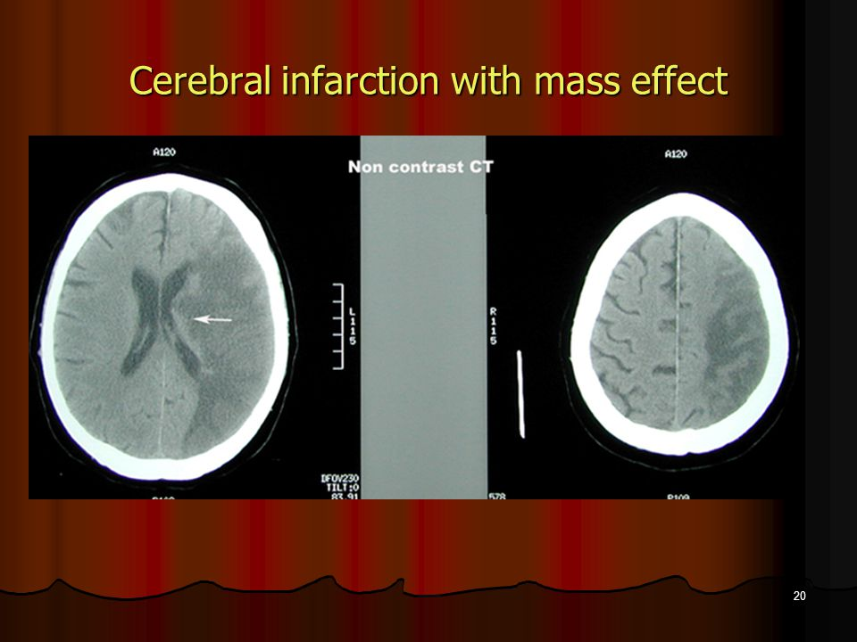 Cerebral infarction with mass effect