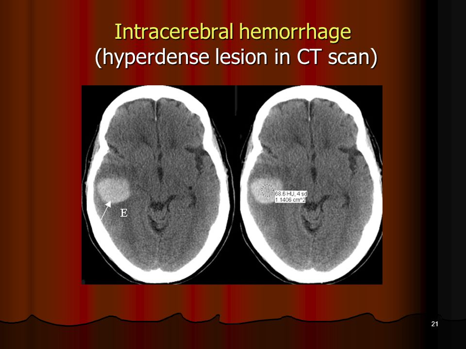 Intracerebral hemorrhage (hyperdense lesion in CT scan)
