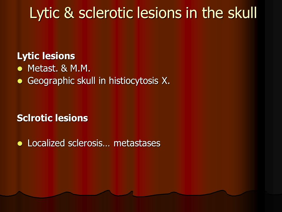 Lytic & sclerotic lesions in the skull