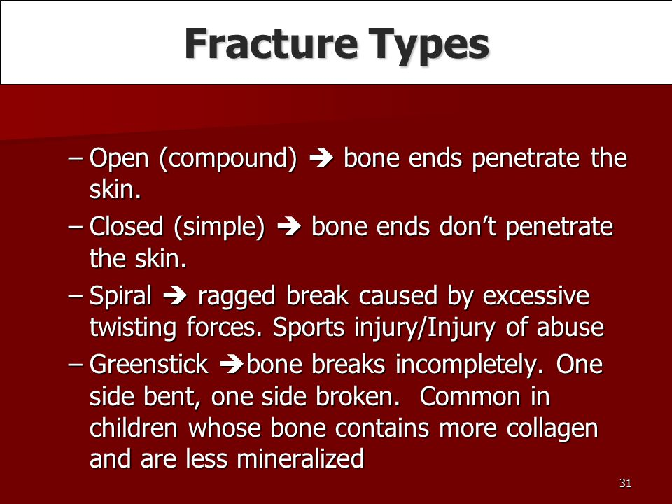 Fracture Types Open (compound)  bone ends penetrate the skin.