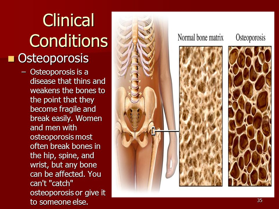 Clinical Conditions Osteoporosis