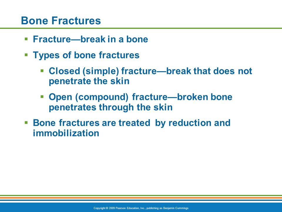 Bone Fractures Fracture—break in a bone Types of bone fractures