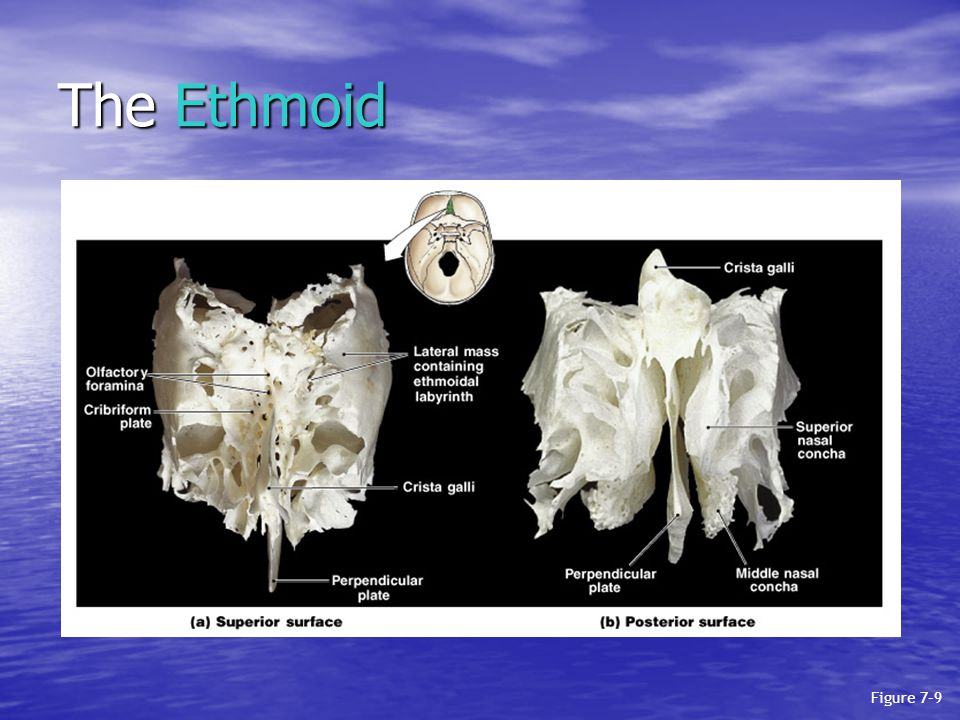 The Ethmoid Figure 7–9