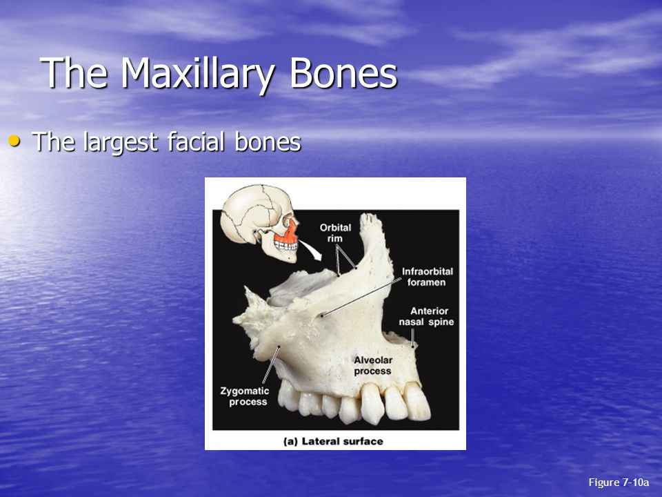 The Maxillary Bones The largest facial bones Figure 7–10a