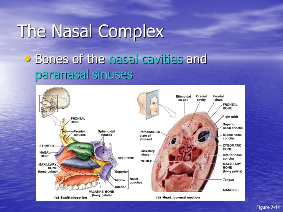 The Nasal Complex Bones of the nasal cavities and paranasal sinuses