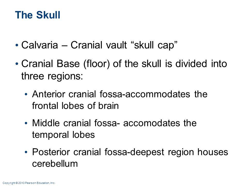 Calvaria – Cranial vault skull cap