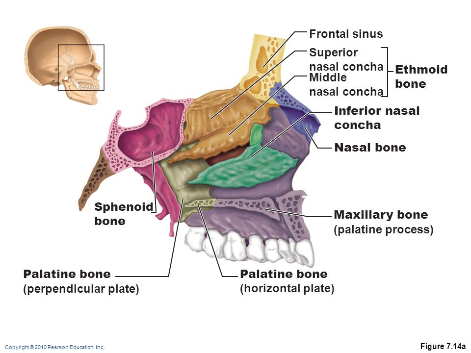(perpendicular plate) Palatine bone (horizontal plate)