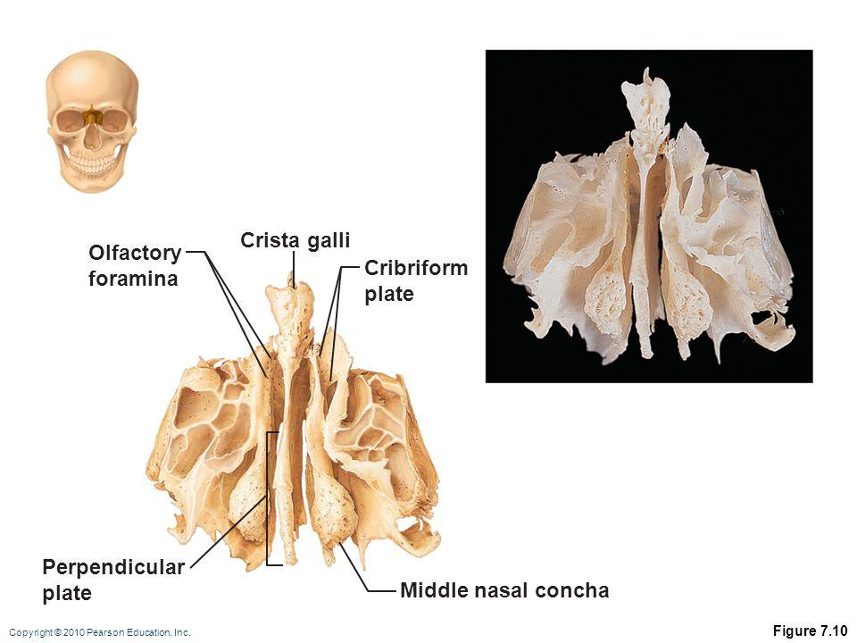 Crista galli Olfactory foramina Cribriform plate Perpendicular plate