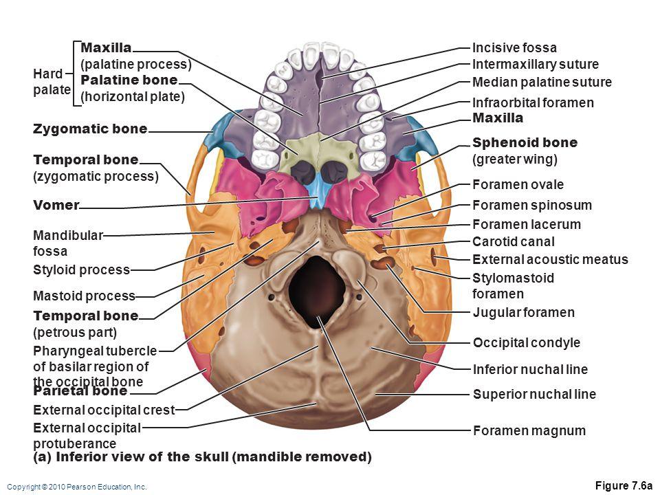 Intermaxillary suture Hard palate Palatine bone (horizontal plate)