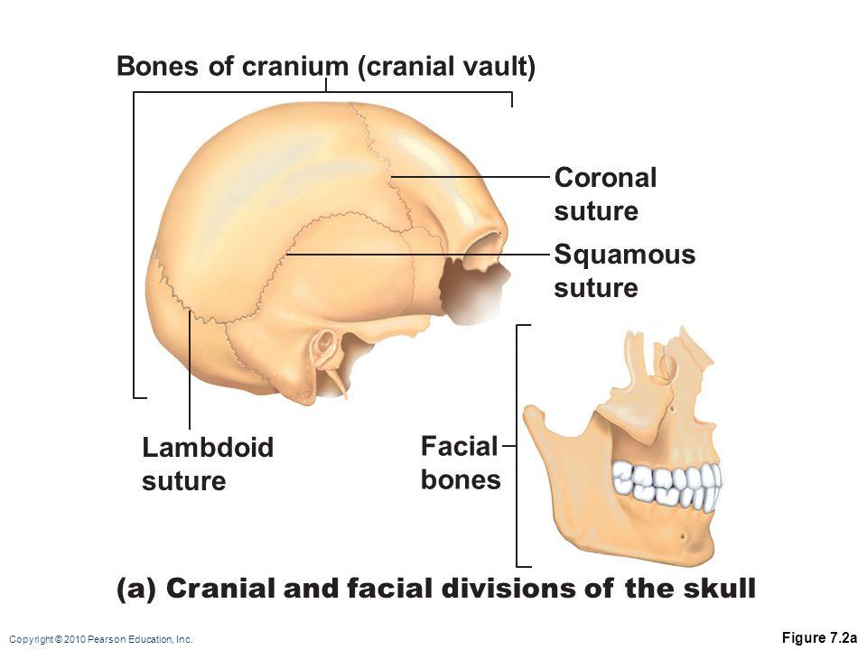 Bones of cranium (cranial vault)