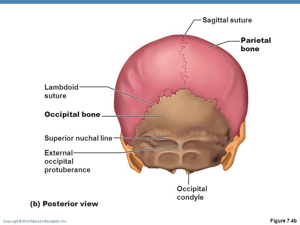 Sagittal suture Parietal bone Lambdoid suture Occipital bone