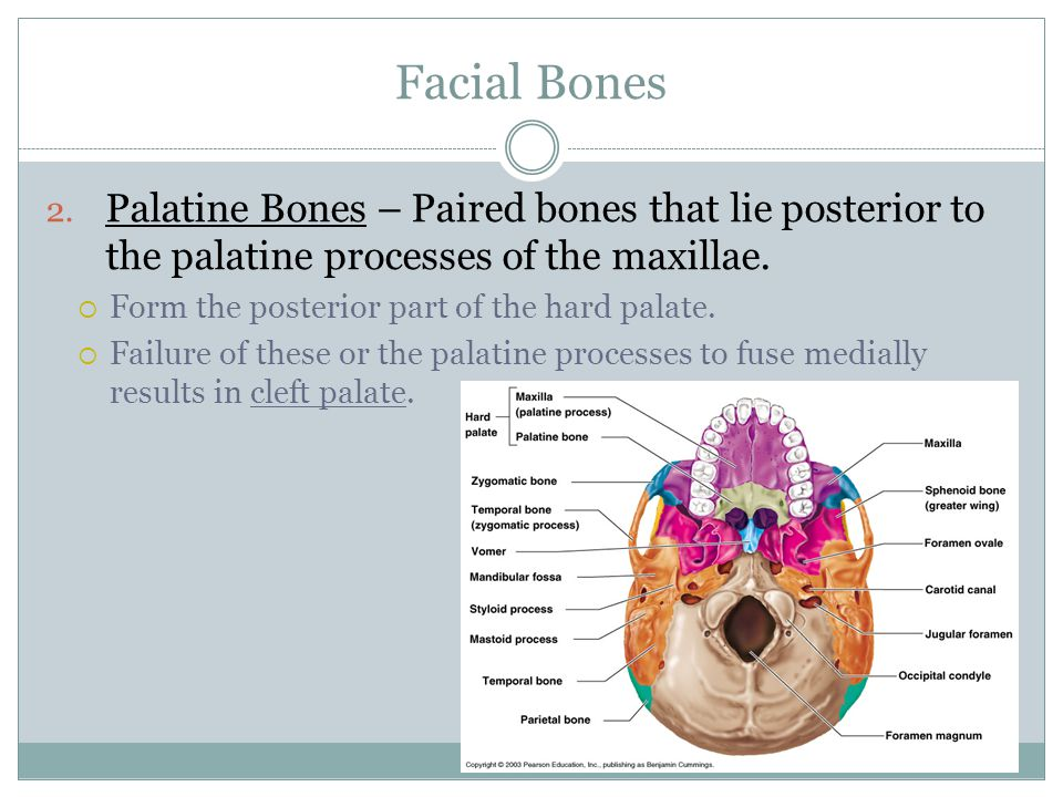 Facial Bones Palatine Bones – Paired bones that lie posterior to the palatine processes of the maxillae.