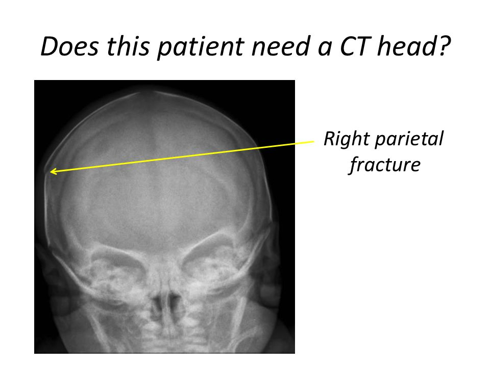 Does this patient need a CT head