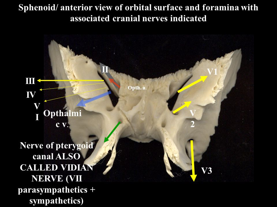 Sphenoid/ anterior view of orbital surface and foramina with associated cranial nerves indicated