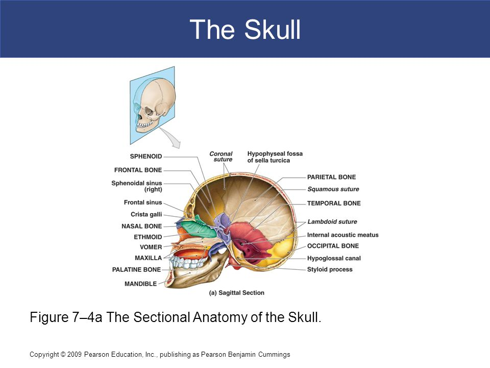 The Skull Figure 7–4a The Sectional Anatomy of the Skull.