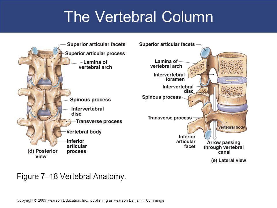 The Vertebral Column Figure 7–18 Vertebral Anatomy.