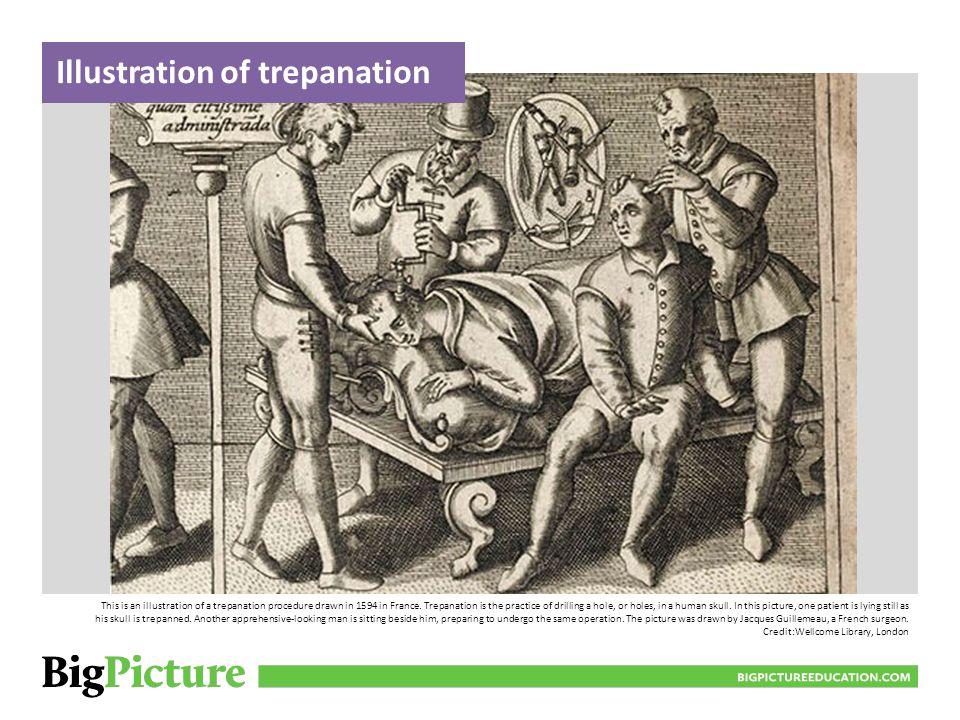 Illustration of trepanation