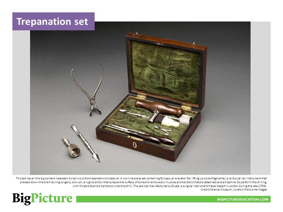 Trepanation set BIGPICTUREEDUCATION.COM