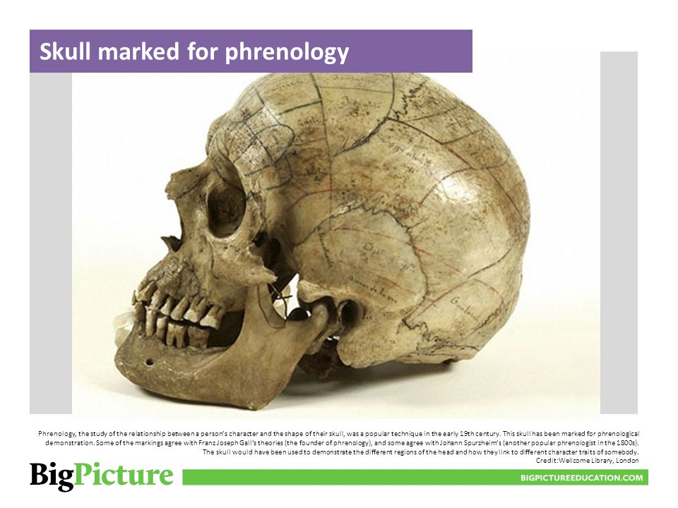 Skull marked for phrenology