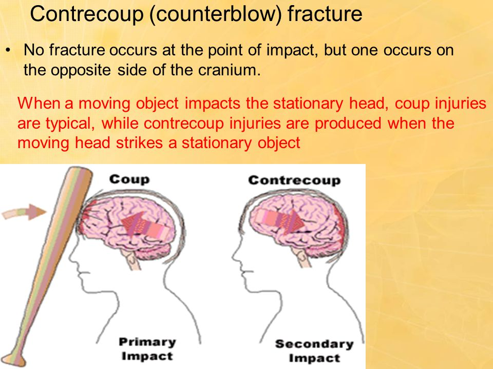 Contrecoup (counterblow) fracture