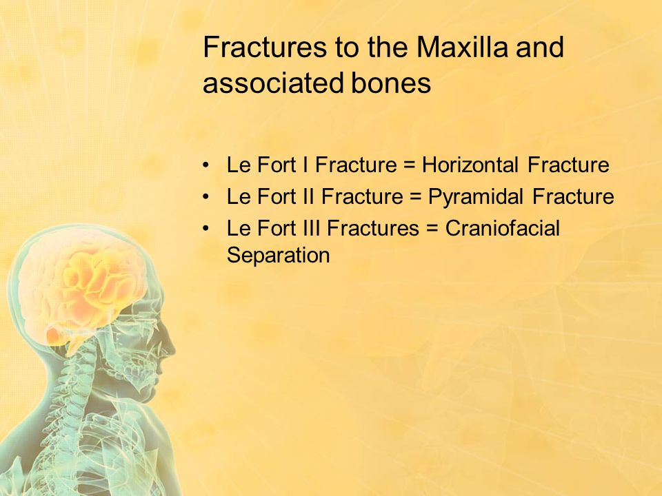 Fractures to the Maxilla and associated bones