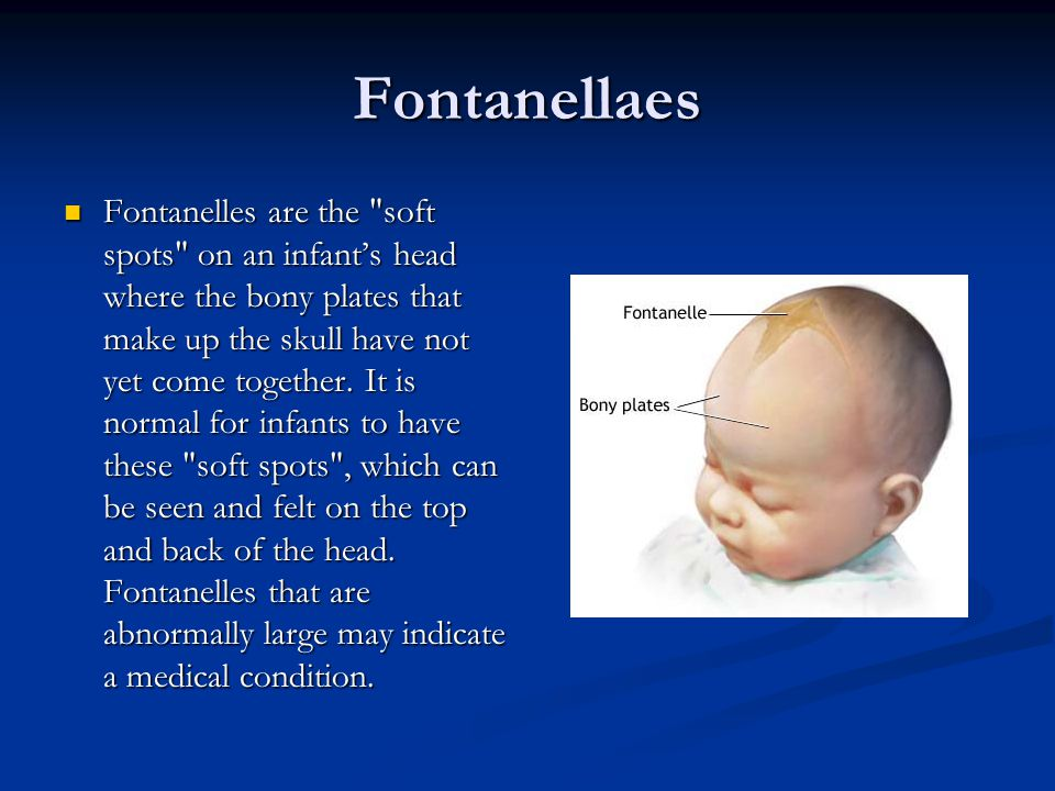 Fontanellaes